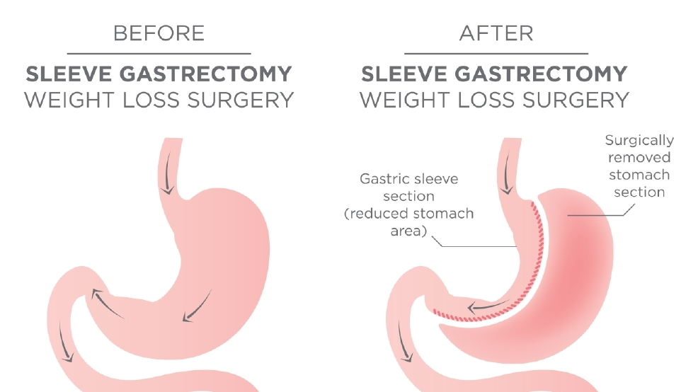 What Is Gastric Sleeve Surgery Brought To You By Lakeland Health