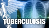 1 case of tuberculosis detected in FHS student