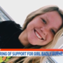 Community to come together to help teen burn victim and family