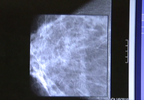 L-BREAST CANCER_frame_691.png