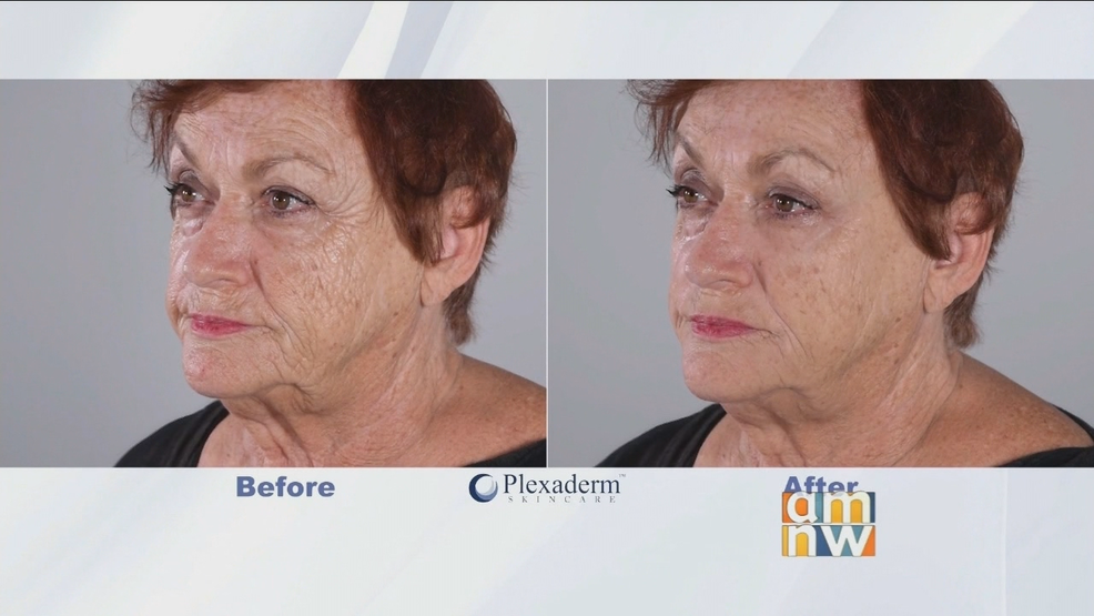 Plexaderm for Wrinkles & Under Eye Bags