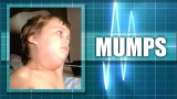 Health agency reports mumps outbreak in northwest Arkansas